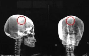 Китаянка прожила 46 лет с иглой в головном мозге