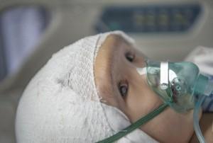 Маленькому ребенку из Китая пересадили череп, напечатанный на 3D-принтере